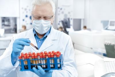 בדיקות מעבדה - אנדוקרינולוגיה - תמונת המחשה