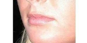 עיצוב הפנים-מילוי שפתיים לפני