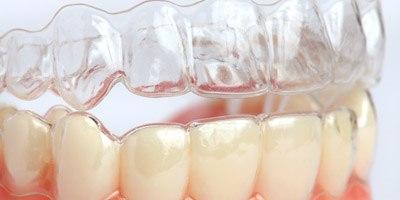 יישור שיניים בשיטת ארודנטיס (אילוסטרציה)
