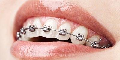 יישור שיניים לילדים (אילוסטרציה)