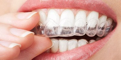 יישור שיניים למבוגרים (אילוסטרציה)