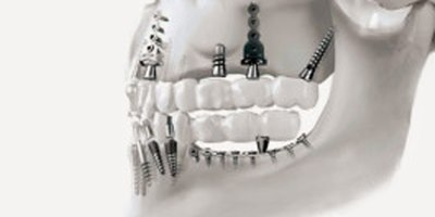 השתלת שיניים בזאלית (אילוסטרציה צילום: המרכז להשתלה בזאלית)