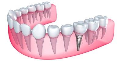 השתלת שיניים (אילוסטרציה צילום shutterstock)