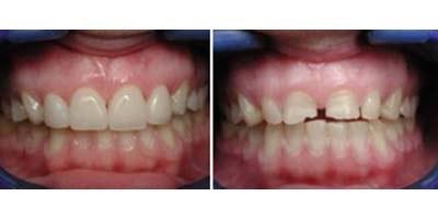 """לפני ואחרי הטיפול ברווח בשיניים. צילום: ד""""ר אבידן לרון"""
