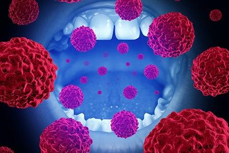 סרטן חלל הפה (אילוסטרציה shutterstock)
