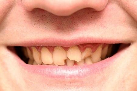 שיניים קדמיות שבורות (אילוסטרציה shutterstock)