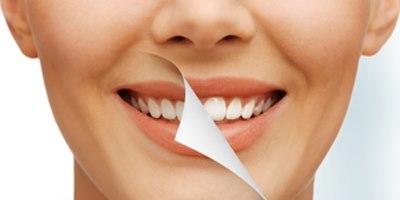 הלבנת שיניים. אילוסטרציה: שאטרסטוק