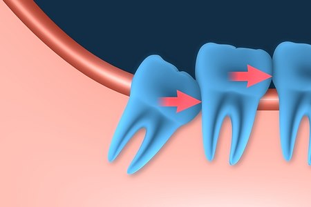 שן בינה כלואה (אילוסטרציה shutterstock)