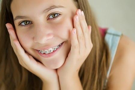 ניתן ליישר שיניים באופן  הנסתר מן העין. צילום: shutterstock