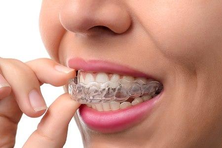 ליישר את השיניים בזמן הנוח לך (אילוסטרציה shutterstock)