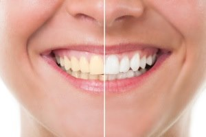הלבנת שיניים נועדה לשפר את המצב האסתטי של השן. צילום: thinkstock
