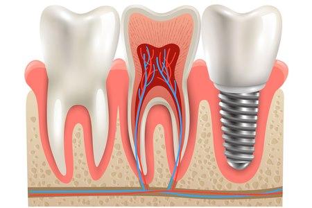מימין - שתל, באמצע - שן טבעית. שמירה על השן הטבעית שומרת גם על העצם שמסביבה. צילום: שאטרסטוק