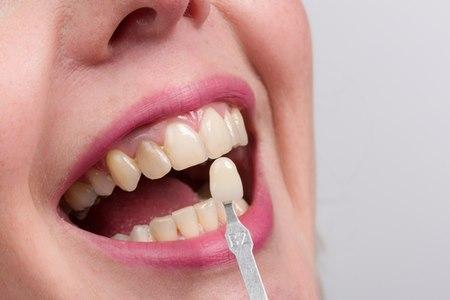 אם לפציינט יש סבלנות, ניתן לטפל בהרבה שיניים במפגש אחד. צילום: שאטרסטוק