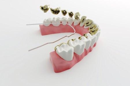 סמכים פנימיים - מודבקים בחלקה הפנימי של השן. צילום: שאטרסטוק