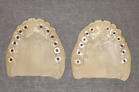 """סד כירורגי אשר תוכנן לביצוע 12 שתלים ללא פתיחת החניכיים. צילום: ד""""ר יוסי פנקס"""