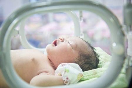 לידה של פג לפני שבוע 37 היא סיבוך שכיח. צילום: שאטסרטוק