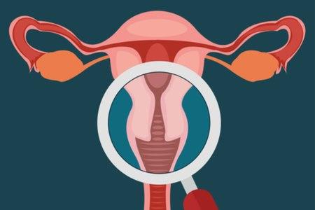 היסטרוסקופיה מאפשרת לגניקולוג לבחון את חלל הרחם. צילום: שאטרסטוק