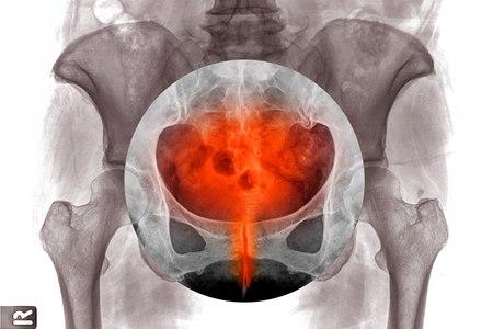 מראה דלקת שלפוחית השתן בצילום רנטגן. צילום: שאטרסטוק