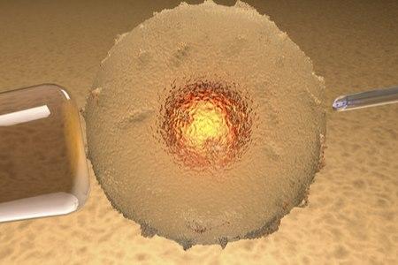 ישראל מממנת טיפולי פריון עם ביציות עצמיות עד גיל 45. צילום: שאטרסטוק