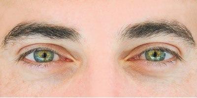הסרת משקפיים בלייזר או עדשות (אילוסטרציה)