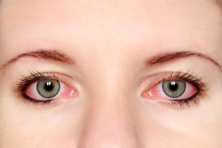 דלקת עיניים ממושכת. צילום: שאטרסטוק