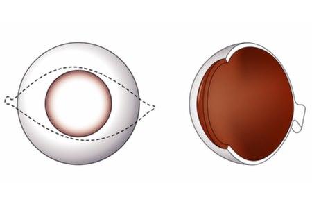 מבנה קרנית העין. צילום אילוסטרציה: שאטרסטוק