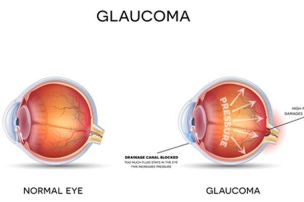משמאל - עין תקינה, מימין - גלאוקומה. הלחץ התוך עיני שפוגע בעצב הראייה וחלה חסימה של ניקוז העין. צילום: שאטרסטוק