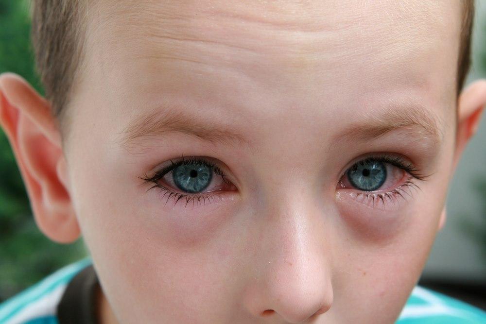 החומרים הגורמים לאלרגיה בעיניים נישאים בדרך כלל באוויר. צילום: שאטרסטוק