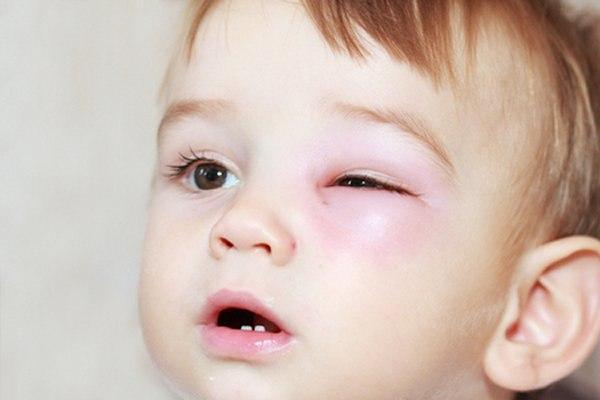 דלקת עיניים אצל תינוק. אילוסטרציה: שאטרסטוק
