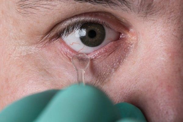 שימוש בעיניים תותבות משפר את המראה האסתטי. צילום: שאטרסטוק
