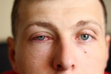 לרוב התסמינים יופיעו בעין אחת ולאחר מכן יתפשטו לעין השנייה. צילום: thinkstock