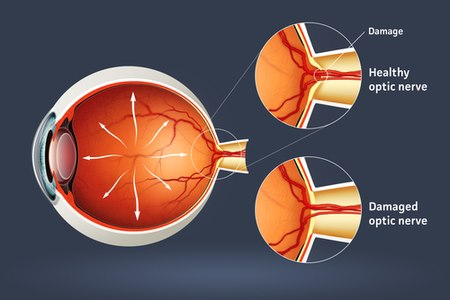 למעלה: עצב בריא, למטה: עצב פגוע כתוצאה מלחץ תוך עיני. צילום: שאטרסטוק