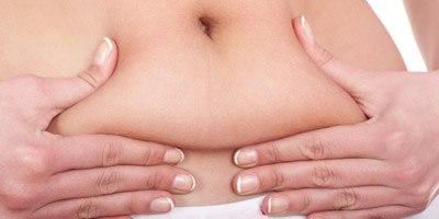הסרת עודפי עור אחרי דיאטה (אילוסטרציה)