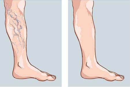 לפני ואחרי טיפול העלמת ורידים. צילום אילוסטרציה: שאטרסטוק