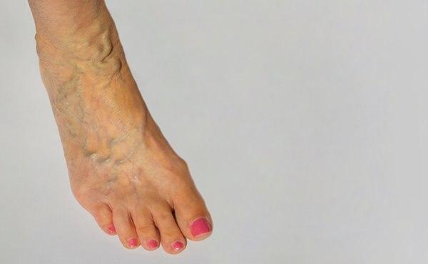 דליות ברגליים נגרמות מאי ספיקת דם בווריד הראשי של הגפיים. צילום: שאטרסטוק