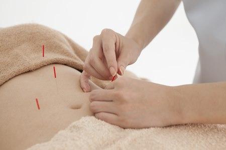 דיקור סיני הוא אחד הכלים המסייעים בטיפול בבעיות פריון. צילום: שאטרסטוק