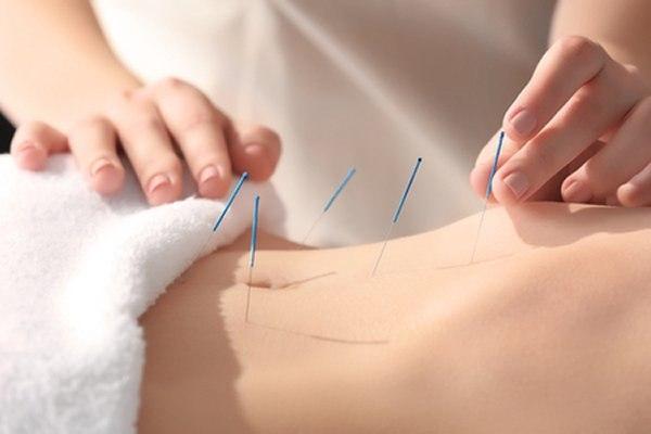 דיקור במחטים הוא שיטת טיפול אשר התפתחה לאורך אלפי שנים. צילום: שאטרסטוק