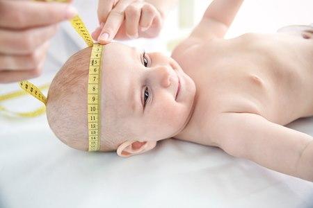 """חוסר סימטריה בגלל התגרמות מוקדמת של הגולגולת מתגלה בד""""כ במעקב אחר היקף ראשו של התינוק. צילום: שאטרסטוק"""