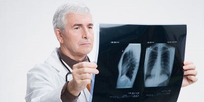 סרטן ריאה