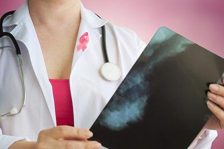 ההישג הגדול הוא במיפוי הגנים הגורמים לסרטן השד (אילוסטרציה shutterstock)