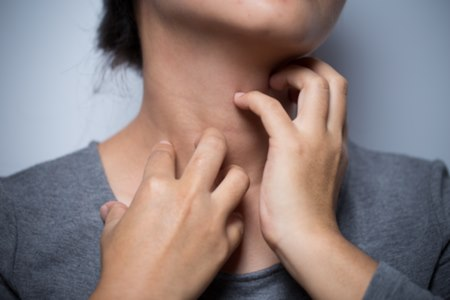 לעיתים גרד בעור יכול להעיד על גידול בדרכי המרה. צילום: שאטרסטוק