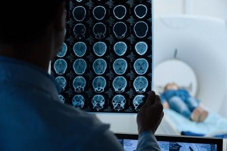לפני הטיפול מבצעים MRI, כדי להדגים את הפתולוגיה המוחית. צילום: thinkstock
