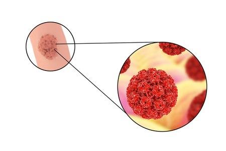 הקונדילומות נגרמות כתוצאה מהידבקות בווירוס הפפילומה. צילום: שאטרסטוק