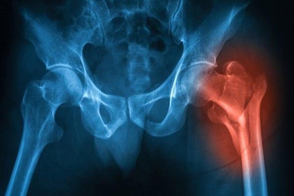 """שבר צוואר ירך גורם בד""""כ לכאבים עזים ואי יכולת לדרוך על הרגל. צילום: שאטרסטוק"""