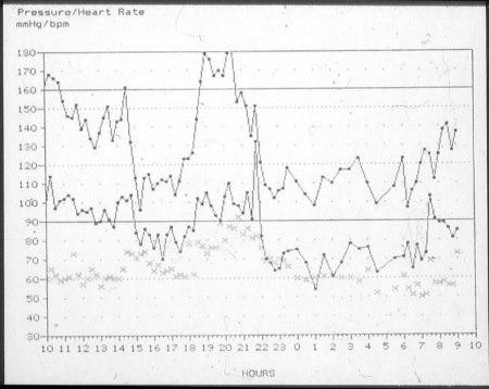 גרף 3: חריגות בלחץ דם במשך היממה בתגובה לסטרס