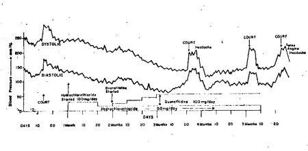גרף 4: חריגות בלחץ דם לאורך היממה בתגובה ללחץ בעבודה