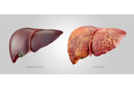 משמאל: כבד בריא, מימין: שחמת הכבד. צילום: thinkstock