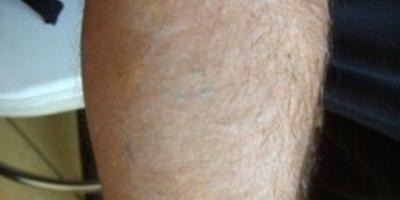 """אחרי 5 טיפולים להסרת הקעקוע (צילום: """"עיניים"""")"""