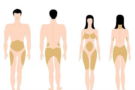 פיזור שומן בגוף. אילוסטרציה: שאטרסטוק