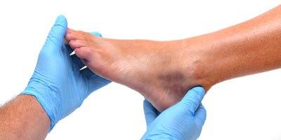 חשוב לאבחן את הגורם לפצע (אילוסטרציה shutterstock)